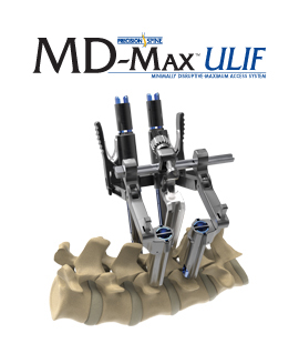 MD-Max™ ULIF Minimally Disruptive-Maximum Access System